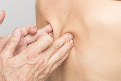 Osteopathy treatment for torticollis